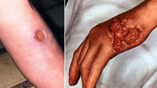 третичный сифилис в области рук