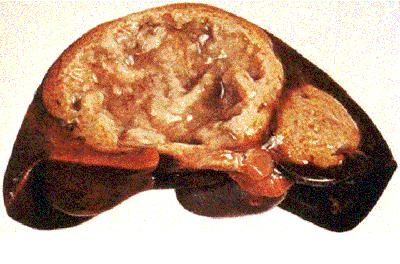 амебиаз печень
