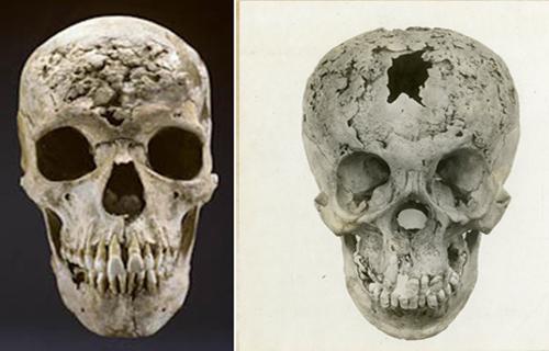 кости черепа поздний сифилис