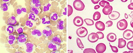 эозинофилия лямблиоз
