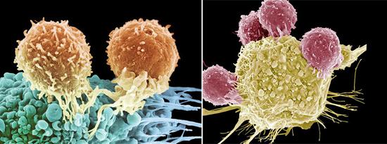 раковая клетка и иммунные клетки