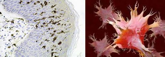 фото слева внутриэпидермальные макрофаги клетки Лангерганса