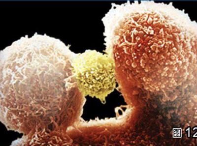фото иммунная NK-клетка
