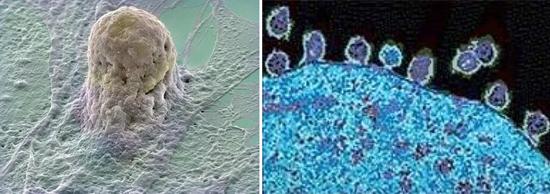 вич патогенез фото
