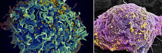иммунная клетка вич