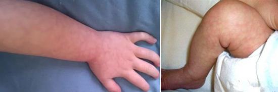 «Мраморный» рисунок кожи инфекция