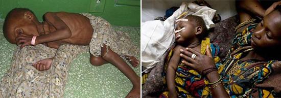 хроническая диарея Африка