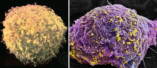 Лимфоцит пораженный вич