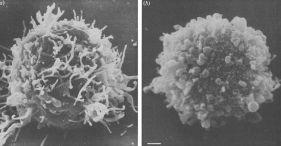 лимфоцит
