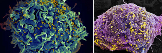иммунные клетки вич