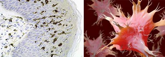 клетки Лангерганса