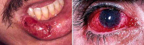 Герпетические поражения при иммунодефиците