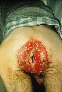 проктит при иммунодефиците