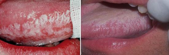герпесное поражение при иммунодефиците