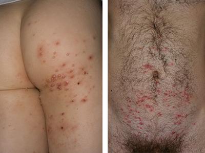 контагиозный моллюск часто наблюдается при ВИЧ и СПИДе