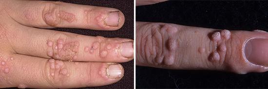 бородавки часто наблюдаются при иммунодефиците