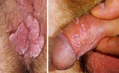 кондиломы часто наблюдаются при ВИЧ и СПИДе