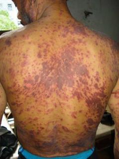 Сыпь у ВИЧ-инфицированных