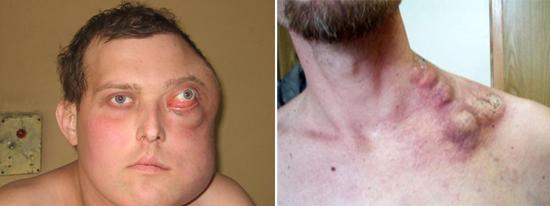 лимфома Беркитта часто наблюдается при СПИДе