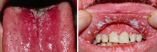 Поражение слизистой полости рта