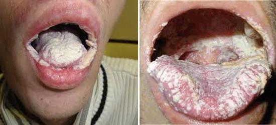 молочница во рту при вич