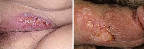 генитальный герпес при СПИДе