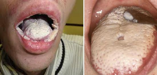молочница полости рта при СПИДе