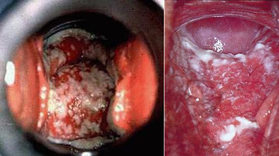 генитальный кандидоз при иммунодефиците