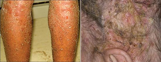 себорейный дерматит при СПИДе