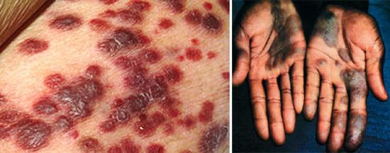 разгара СПИДа и саркома Капоши