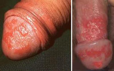 первые симптомы заболевания у мужчин