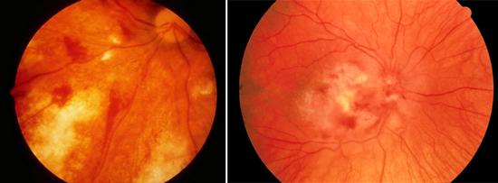 цитомегаловирусный ретинит