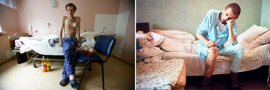 фото больных иммунодефицитом
