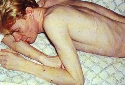 первые симптомы при вич у мужчин и женщин на ранних стадиях