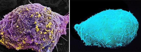 иммунная клетка