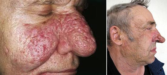 Demodex brevis на лице
