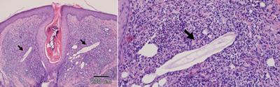 diagnos-demodekoz-p-16
