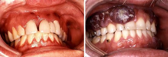 поражение полости рта при СПИДе фото