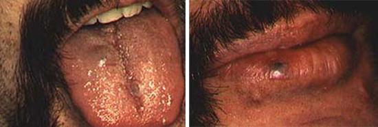 фото опухоль на языке при СПИДе