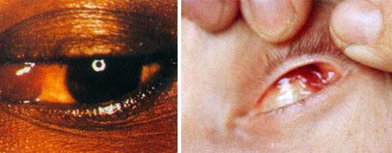 Саркома Капоши глаз
