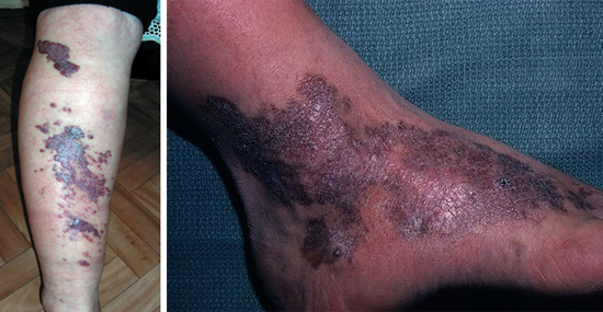 саркома Капоши на коже голени и стопы