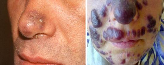 опыхоль на лице при ВИЧ