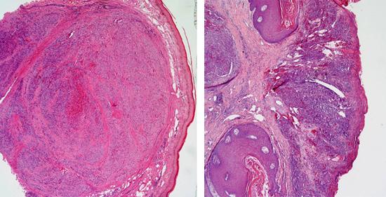 эпидермис саркома