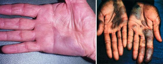 опухоли при СПИДе на руках