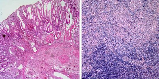 опухоль при ВИЧ