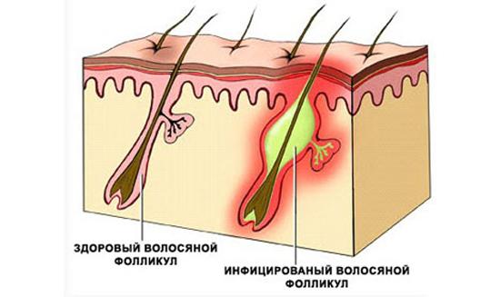 Отрубевидный (разноцветный) лишай у человека