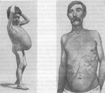 simptom-malyarii-p-16