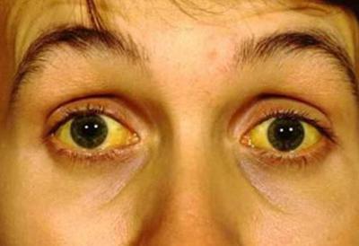 simptom-malyarii-p-24