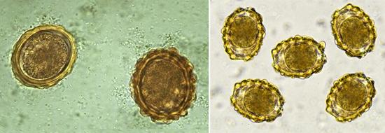 Ascaris lumbricoides кал