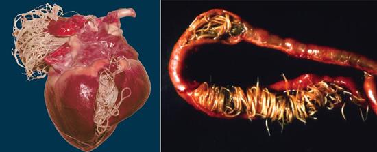 глисты в сердце в кишечнике